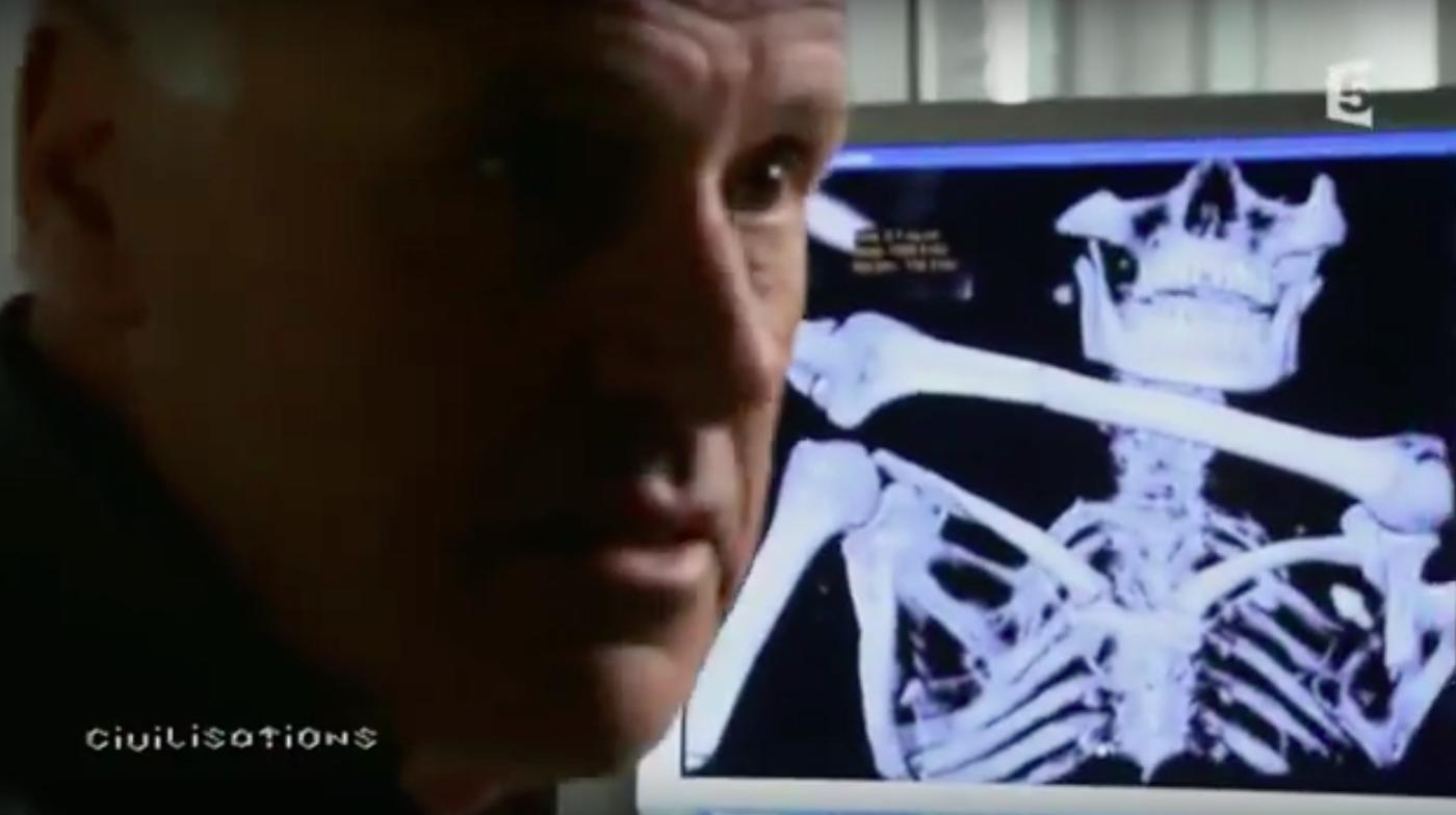 Ötzi la momie des glaces, su France 5